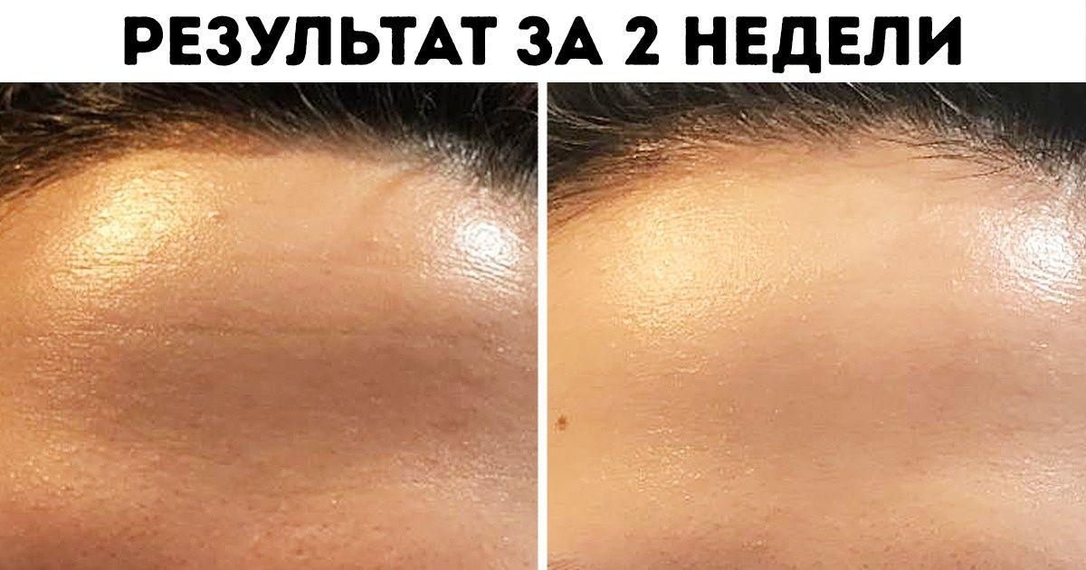 Красивая кожа уход за кожей thumbnail