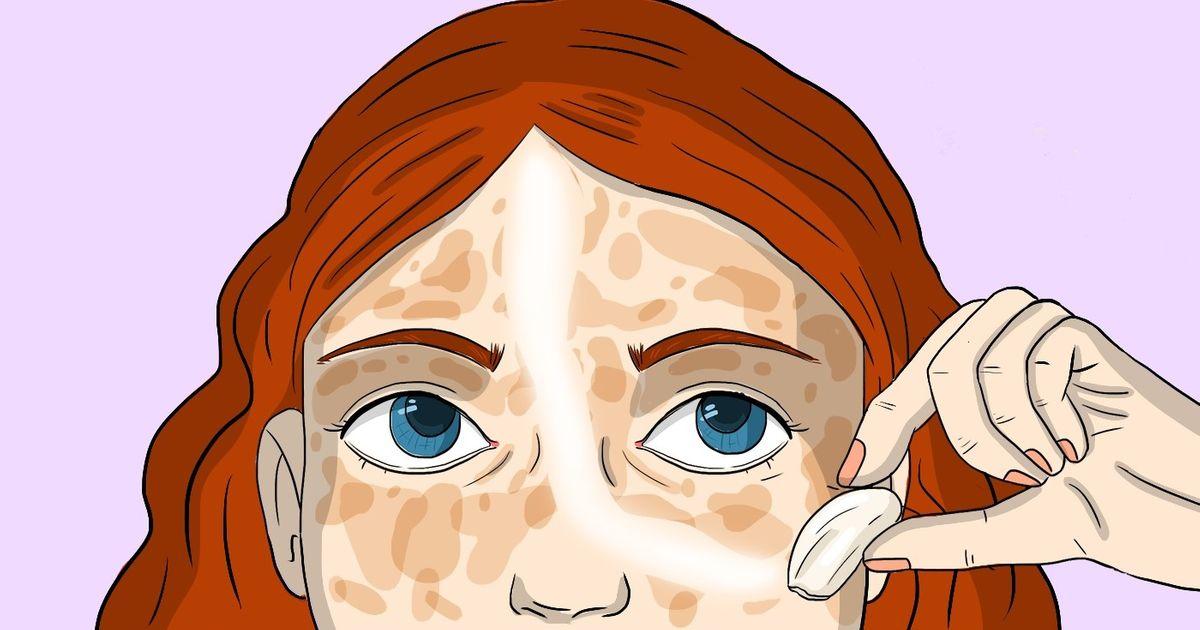 Сухая кожа и пигментные пятна thumbnail