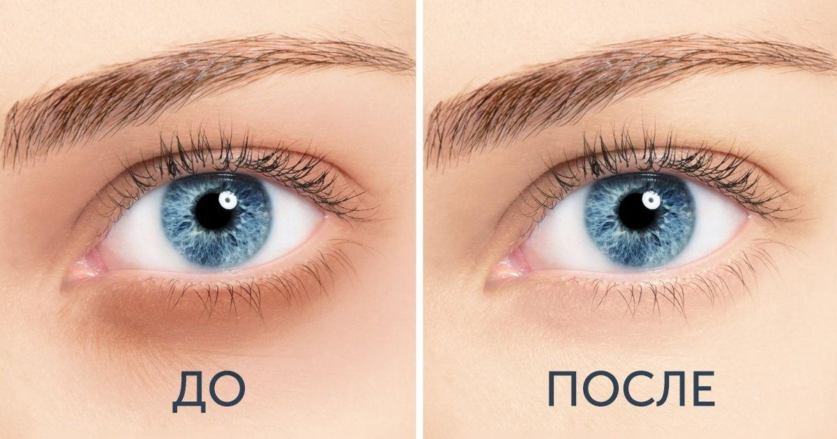 10средств оттемных кругов под глазами, которые можно приготовить дома