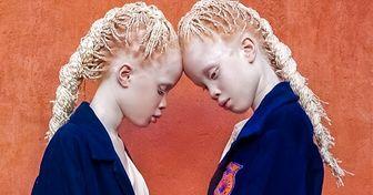 Год назад необычные близняшки стали интернет-сенсацией. Посмотрите, как они выглядят сейчас