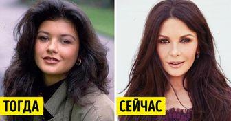Посмотрите, как выглядели знаменитости до того, как решили поработать над своей внешностью