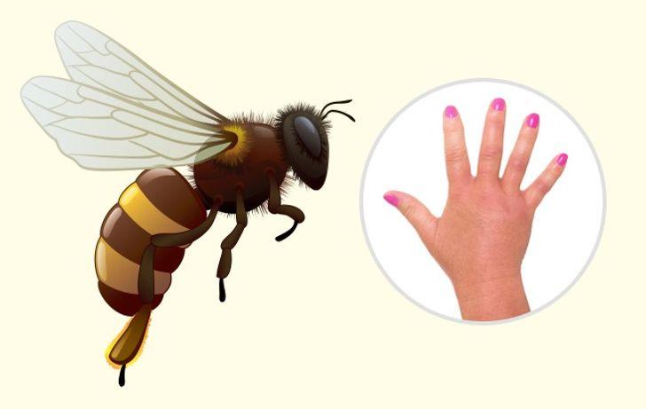 Как распознать, какое именно насекомое вас укусило