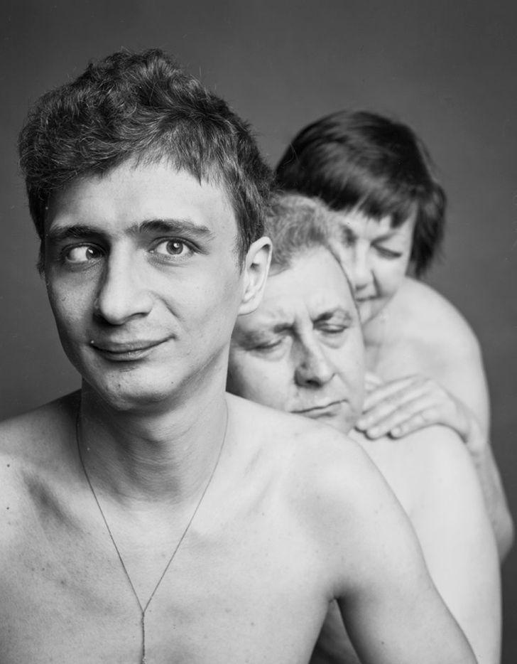 Фотопроект «Будь любым» показывает обжигающую правду о людях, которые сильно отличаются от других