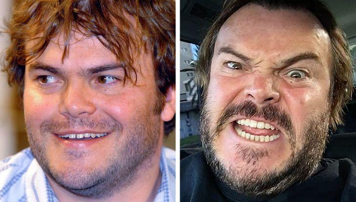 Как изменились улыбки 15 знаменитостей после того, как они исправили свои зубы