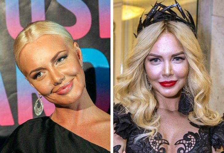 10 российских звезд, которые за время карьеры словно поколдовали над своей внешностью