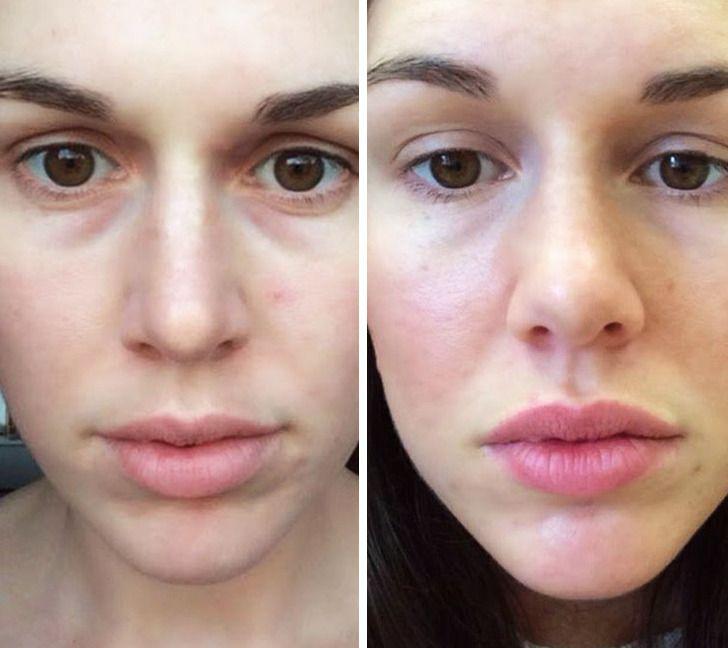 6действий для идеальной кожи под глазами, которые занимают 1минуту