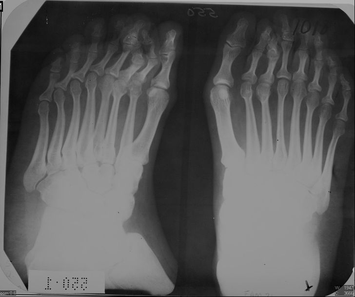 20 снимков, которые раньше видели только рентгенологи. А теперь можете и вы