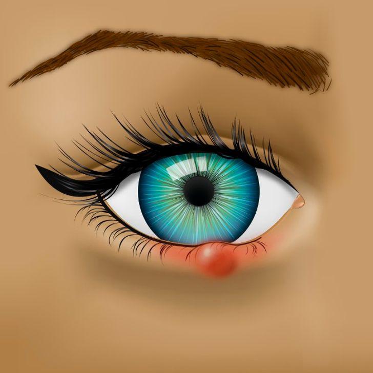 8вещей, которые глаза пытаются сказать овашем здоровье