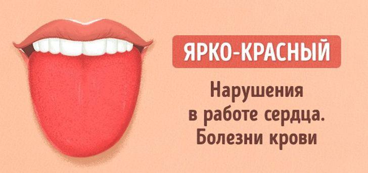12проблем, окоторых может рассказать цвет языка
