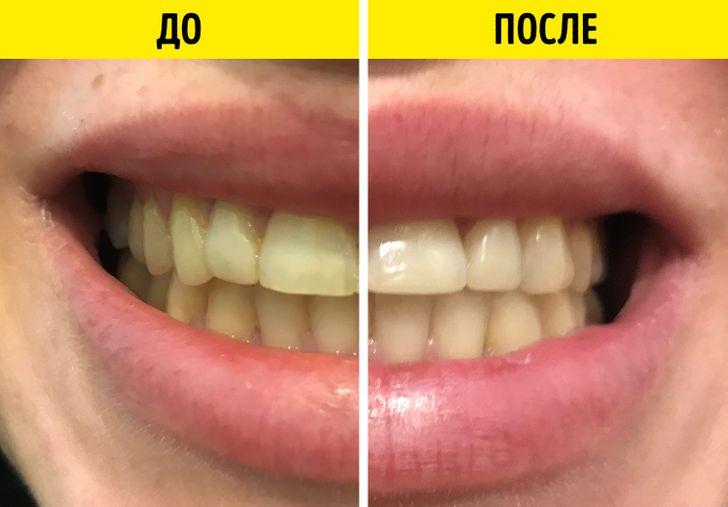 Мы проверили 5 способов отбеливания зубов в домашних условиях (Сода нас  разочаровала)