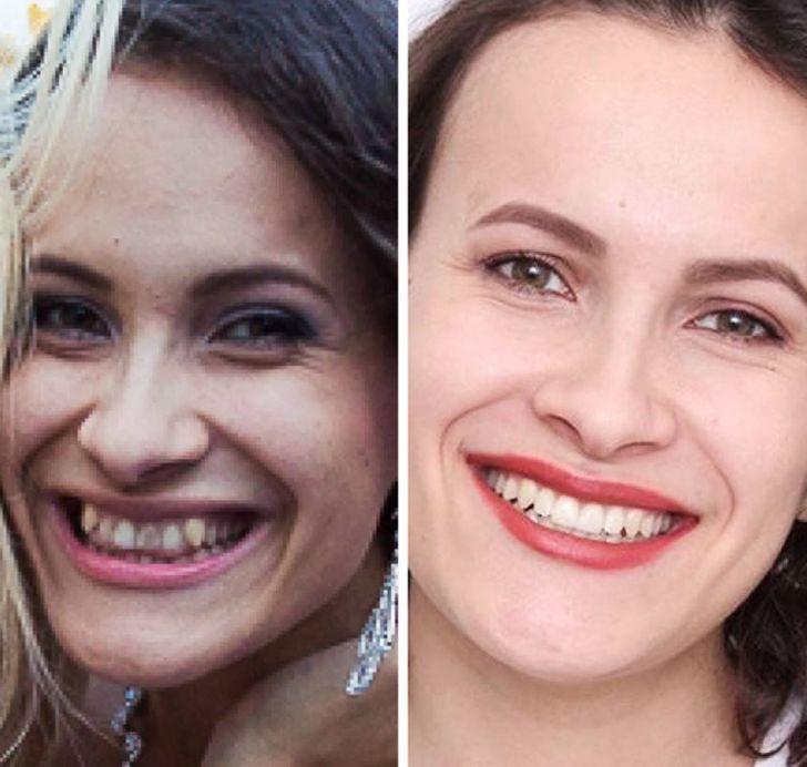 Пользователи сети показали, как изменилась их внешность после того, как они поправили всего одну деталь