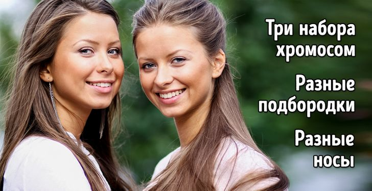 7 типов близнецов, доказывающих, что матушка-природа горазда на выдумки