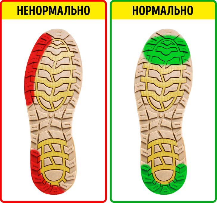 8 заболеваний, которые можно предупредить, если внимательно посмотреть на вашу обувь