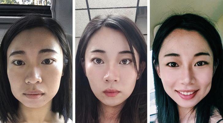 20+ человек, которым пришлось побороться за новую внешность и жизнь